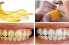[Video] 10 cách hô biến hàm răng xỉn màu thành trắng sáng như ngọc