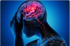 ''Trẻ hóa'' hệ miễn dịch - bước tiến lớn điều trị tổn thương não bộ