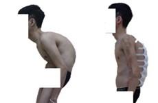 Nắn chỉnh biến dạng cột sống thành công cho bệnh nhân ''siêu gù''