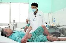 TPHCM: Tai biến nặng do tự mua thuốc trên mạng chữa bệnh vảy nến
