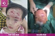 Phú Thọ: Bé gái 3 tuổi bị thương nặng do chó nhà hàng xóm cắn