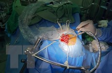 Cứu sống bệnh nhân phình mạch máu não bằng vi phẫu kẹp cổ túi phình