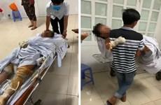 Phú Yên: Khởi tố đối tượng phóng hỏa khiến 4 người bị bỏng nặng