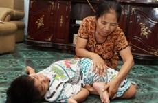 Việt Nam-Hoa Kỳ giao lưu nạn nhân da cam thế hệ thứ 2 và 3