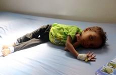UNICEF lên án việc hơn 2.200 trẻ em bị sát hại ở Yemen