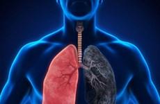 Sử dụng kim loại nặng gallium trong điều trị nhiễm trùng phổi