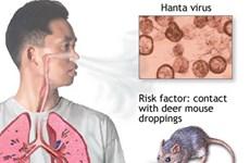 Bùng phát dịch bệnh nguy hiểm lây từ chuột sang người ở Argentina