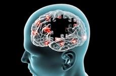 Hàn Quốc phát triển công nghệ chẩn đoán giảm trí nhớ nhờ xét nghiệm