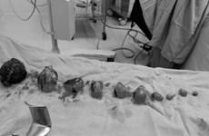 Cần Thơ: Phẫu thuật thành công lấy thai kết hợp bóc nhân xơ tử cung