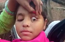 Ấn Độ: Kỳ lạ một bé gái với khả năng khóc ra những viên đá nhỏ