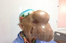 [Video] Cụ bà bị khối u khổng lồ chèn gần hết trên khuôn mặt