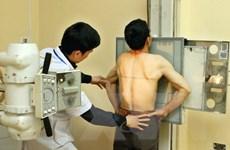 Rà soát các máy X-quang do nguy cơ ảnh hưởng sức khỏe