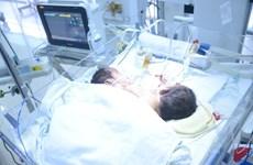 Sức khỏe của hai bé song sinh dính liền rất nguy kịch