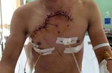 Cứu sống một bệnh nhân có tim và phổi lộ ra ngoài vì tai nạn