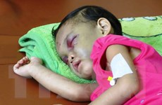 40% trẻ em trong các vụ bạo hành bị tổn thương ở mắt