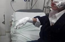 Hà Nội: Nổ bóng bay galaxy, ba sinh viên bị bỏng nặng