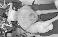 Phẫu thuật cho bệnh nhân có khối u khổng lồ nặng 45kg