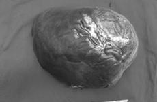 Cắt khối u gan nặng 5kg cho bệnh nhân mắc bệnh hiếm gặp