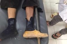 Một nam thanh niên bị xà beng đâm thủng bàn chân trái