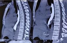 Bệnh viện K: Nội soi 3D lồng ngực mở u xơ lấy dị vật xương cá