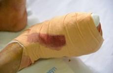 Biến chứng đái tháo đường: Cắt cụt chân vì tự ý điều trị kháng sinh