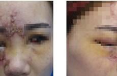 Một phụ nữ nguy cơ mất 1 mắt sau tiêm filler làm đầy mũi