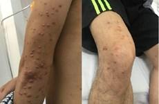 Một thanh niên bị u vàng phát ban từ triệu chứng nổi nốt ngoài da