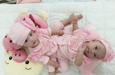 Gần 100 y bác sỹ sẽ tiến hành phẫu thuật tác đôi hai bé song sinh