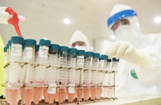 Tặng 20.000 bộ môi trường lấy mẫu xét nghiệm COVID-19 cho Hà Nội