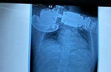 Cấp cứu một người đàn ông bị máy cắt găm sâu vào ngực phải