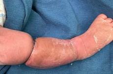Bé trai 9 ngày tuổi mắc hội chứng vòng thắt cẳng chân bẩm sinh