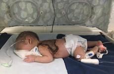 Người nhà tự ý lấy kim chích mụn, 1 trẻ sơ sinh nhiễm trùng huyết nặng