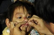 Khám bệnh miễn phí cho 200 bệnh nhân nghèo bị dị tật