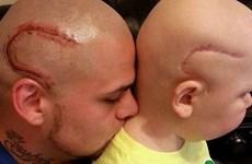 Ông bố xăm hình vết sẹo giống vết mổ phẫu thuật não của con trai