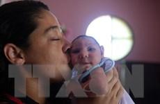 Phát hiện thêm trẻ sơ sinh bị dị tật do virus Zika tại Mỹ