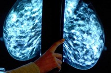 Phát hiện gian dối của Quỹ phân phát thuốc chữa ung thư tại Anh
