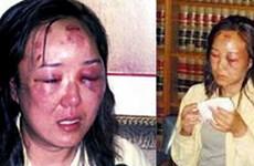 Du khách Trung Quốc nhận bồi thường do bị đánh dã man ở biên giới Mỹ
