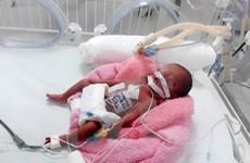 Phẫu thuật tim thành công cho em bé sinh non nặng 600 gram