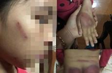 Làm rõ vụ một bé gái ở Thanh Hóa nghi bị bố đẻ bạo hành