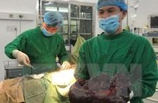 Phẫu thuật cắt khối u lá lách ''khủng'' có trọng lượng 5kg
