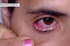 Tranh cãi xung quanh người phụ nữ khóc ra 'nước mắt pha lê'