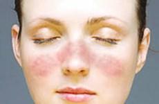 Phát hiện mới về phương pháp chữa trị bệnh phát ban đỏ