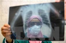 Số ca nhiễm COVID-19 ở Ai Cập, Algeria và UAE tiếp tục tăng mạnh