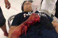 Tiền Giang: Nam thanh niên bị nhóm người bịt mặt chém dã man