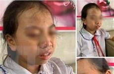 Hà Giang: Tạm đình chỉ lên lớp đối với cô giáo tát học sinh