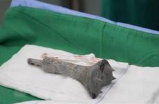 Ghép thành công mảnh hợp kim titanium 3D cho bệnh nhân ung thư xương