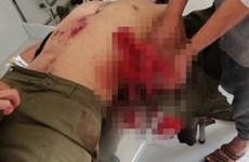 Lâm Đồng: Mìn đánh cá tự chế phát nổ khiến 7 người bị thương