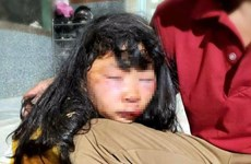 Nữ sinh lớp 6 bị kẻ lạ mặt đánh ngất xỉu khi đang trên đường đi học về