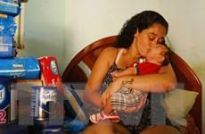 Virus Zika có thể liên quan tới bệnh viêm não ở người lớn