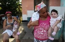 Trẻ mắc bị bệnh đầu nhỏ tăng gấp 20 lần từ khi có virus Zika
